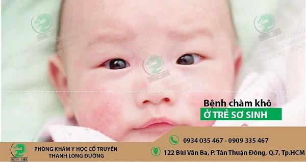 Trị bệnh chàm trẻ em